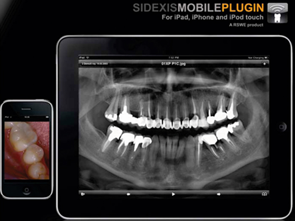 Patient consultation with SIDEXIS XG on iPad now possible