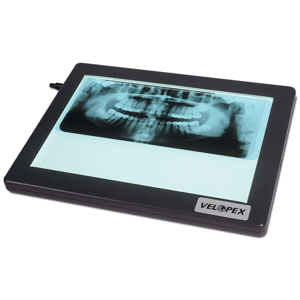 Velopex X-Ray Viewer