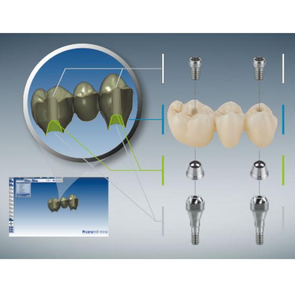 Ceramill ti-connect sr