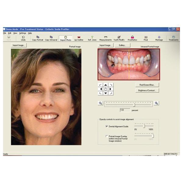 ESP Esthetic Smile Profiler