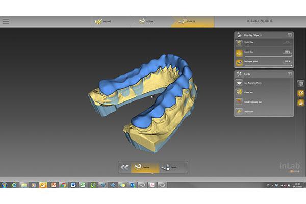inLab CAD SW 16.0