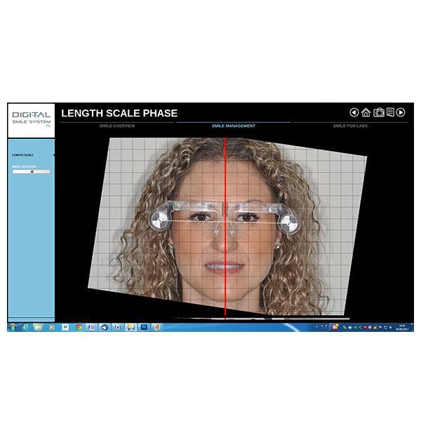 EGS Digital Smile System