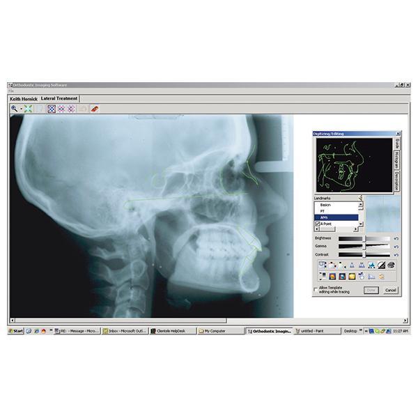 CS Orthodontic Imaging Software
