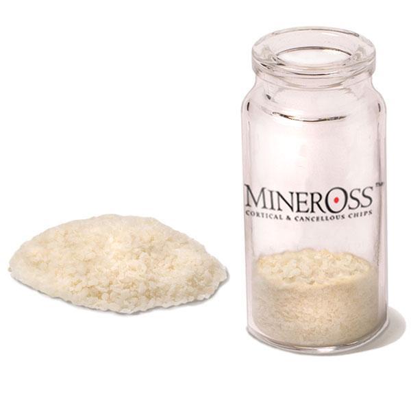 MinerOss Cortical & Cancellous C...
