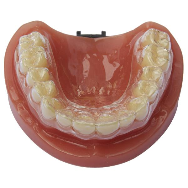 Click Retainers